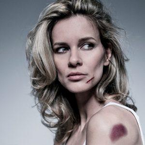 Bruises Remedies & Treatment