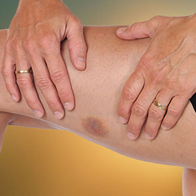 Contusion Healing Herbal Remedies