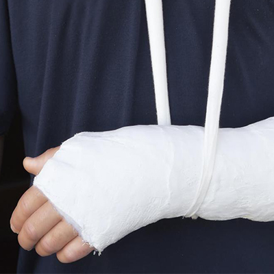 Fractured Bone Healing Remedies