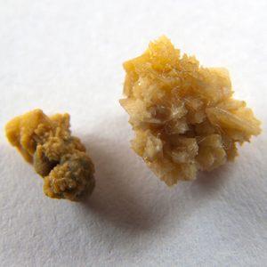 Kidney Stones Herbal Remedies