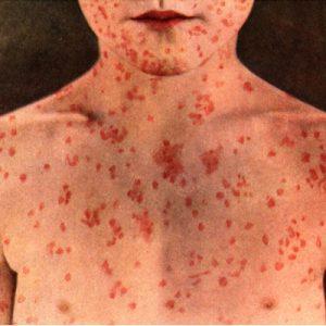Measles Remedies
