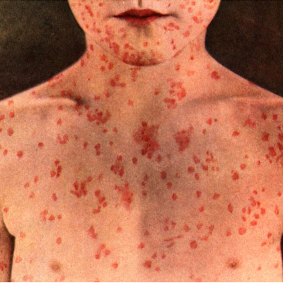 Measles Remedies