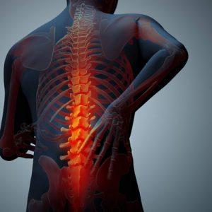 Osteoporosis Herbal Remedies