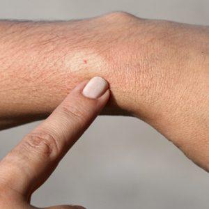 Poisonous Stings & Bites Remedies